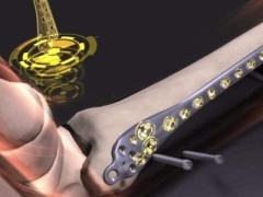 生物可降解复合材料:医学植入技术的重大进展