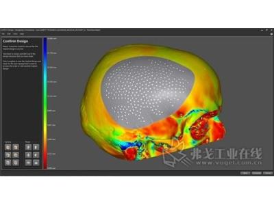 雷尼绍向颌面外科医生展示创新植入体