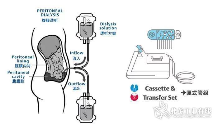 针对腹膜透析应用,主要的装配需求将来自自动腹膜透析(APD)系统中卡匣式管组的装配