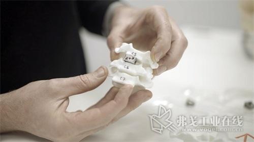 嵌入脊柱模型中的脊柱植入体